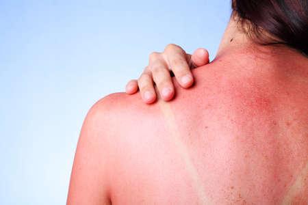sunburned: A female touching her sunburned shoulder