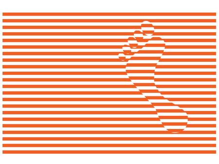 luxacion: paso pie en dislocaciones rayas rojas Foto de archivo