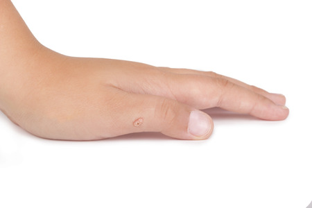 nitrogen: Female hand with warts isolated on the white background Stock Photo