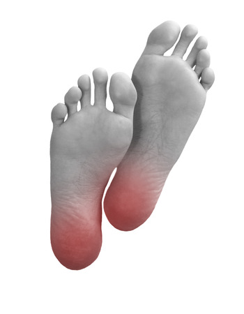 Sole of the foot with red damaged points.Health concept Stock Photo