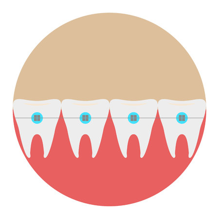 Teeth with braces icon dentist flat vector with long shadow sign. Symbol for mobile user. 向量圖像