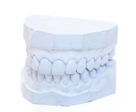 plaster cast: Plaster cast of teeth. All on white background