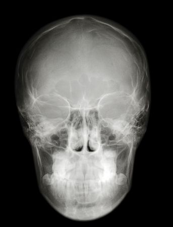 a roentgenogram x-ray photography picture of cranium scull profile Stock Photo