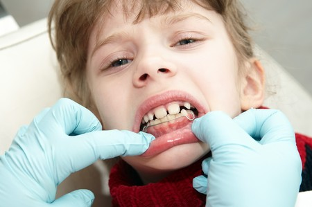 orthodontic doctor examine teeth and gums of little girl jaw Stock Photo - 7421499