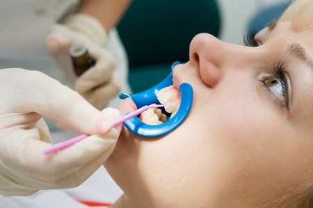 to lacquer: woman with open mouth during dental procedure of teeth protective lacquer covering