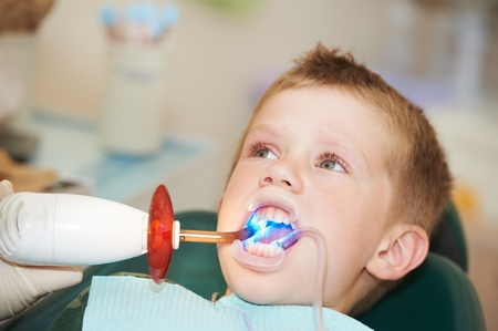 dental filing of child tooth by ultraviolet light Stock Photo - 9920365