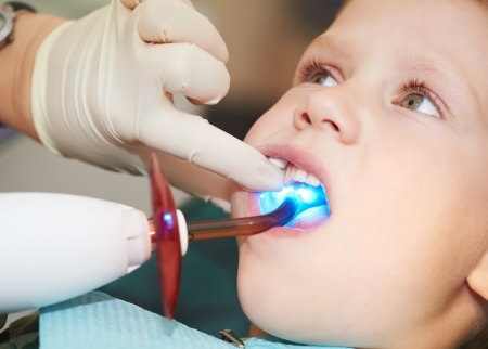 dental filing of child tooth by ultraviolet light photo