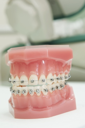 lower and upper dental jaw braces model photo