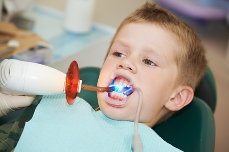 filling equipment: dental filing of child tooth by ultraviolet light