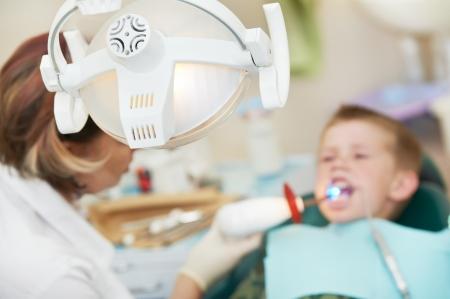ultraviolet: dental filing of child tooth by ultraviolet light