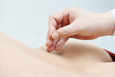 Doctor hands with acupuncture needle photo