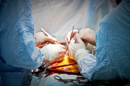 Hands of surgeon team performing operation at cardiology surgery clinic photo