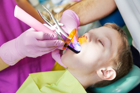 child teeth stopping treatment with dental curing ultraviolet light equipment photo
