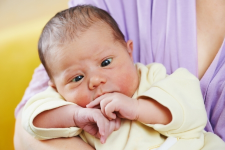 inborn squint phenomenon of newborn baby Stock Photo