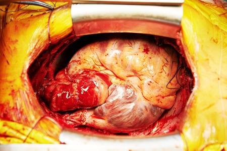 transplantation: menschlichen Herzen in der Herzchirurgie Transplantation. Chirurg Blick Lizenzfreie Bilder
