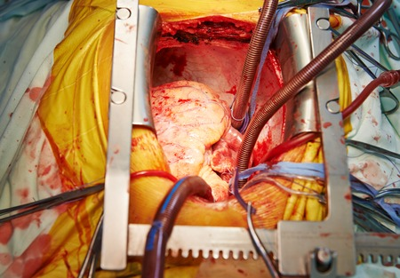 human heart during cardiac surgery transplantation. Surgeon view