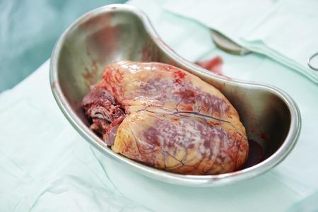 Gebruikte menselijk hart tijdens hartchirurgie transplantatie