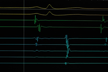 heart failure: heart cardiodiagram tracing on monitor device
