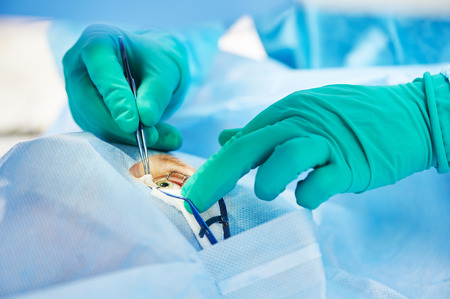 ophthalmology operation. Surgeons hands in gloves performing laser eye vision correction correction Archivio Fotografico