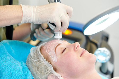 mole: Young woman under laser therapy cosmetology procedure Stock Photo