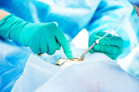 cirujano: operación de la oftalmología. Las manos del cirujano en guantes que realizan ocular con láser de corrección de corrección de la visión