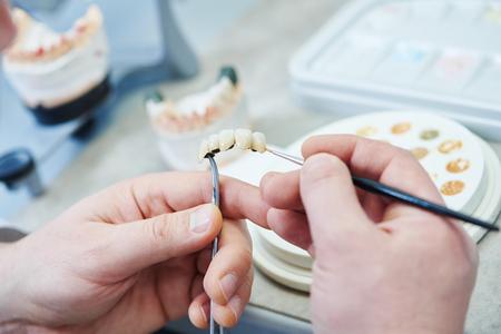 Zahnprothesenarbeit. Zähne malen