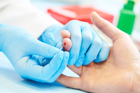 Blood medical test or research. Taking a blood sample from male finger in hospital