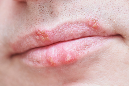 herpes simplex virus infection on male face lips