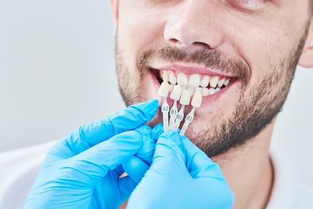 Zahnheilkunde. passende Farbe des Zahnschmelzes mit Bleaching-Tabelle Standard-Bild - 103906081