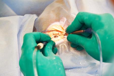 eyesight correction. ophthalmology laser surgery