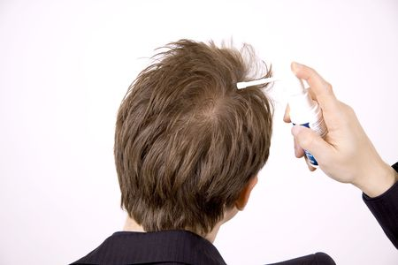 A young adult is treating premature hairloss with a spray.