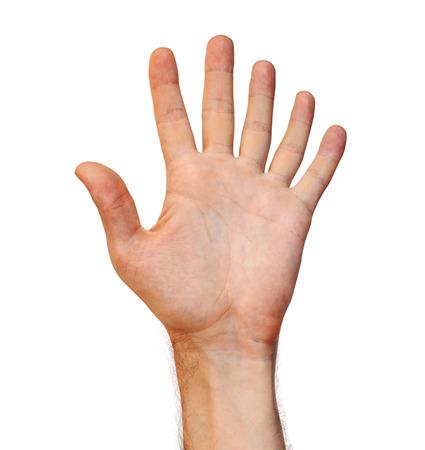 Concepto de mutación genética de una mano humana de seis dedos debido a un apéndice extra