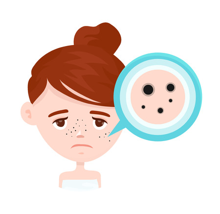 Acne,black spots infographic. Vector modern flat style cartoon character illustration. Isolated on white background. Unhappy teen girl struggling with acne,pimples. Skin face problem concept 向量圖像