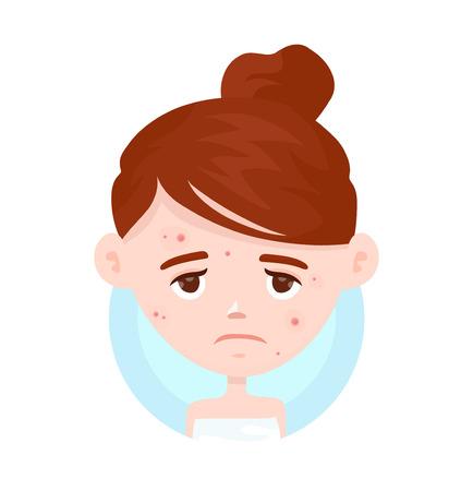 여드름, 여드름 고군분투 불행 한 십 대 소녀입니다. 피부 얼굴 문제 개념입니다. 벡터 현대 평면 스타일 만화 캐릭터 그림입니다. 흰색 배경에 고립.