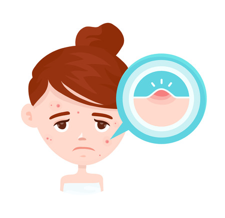 Infographie de l'acné. Illustration de personnage de dessin animé moderne style plat vecteur. Isolé sur blanc