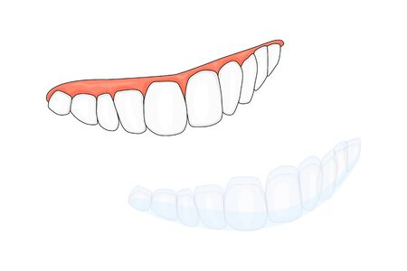 Teeth and invisalign braces or invisible retainer isolated on white background. A way to have a beautiful smile. Dental, orthodontic treatment concept. Dental braces. Orthodontics. Stock vector