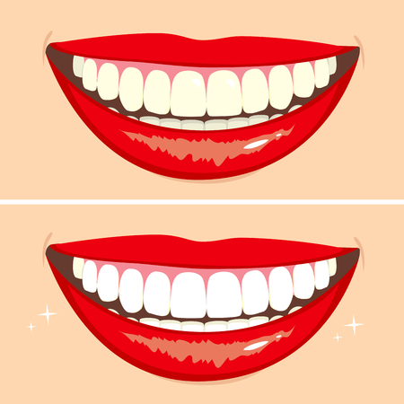 Illustrazione di due sorrisi felici che mostrano prima e dopo sbiancamento dei denti processo