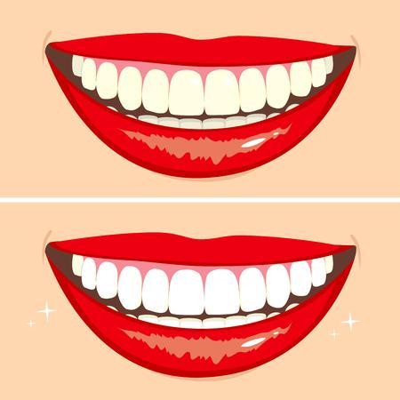 Ilustración de dos sonrisas felices que muestran antes y después del blanqueamiento proceso dientes