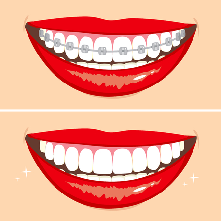Ilustración de dos sonrisas felices que muestran antes y después del proceso de blanqueamiento de dientes