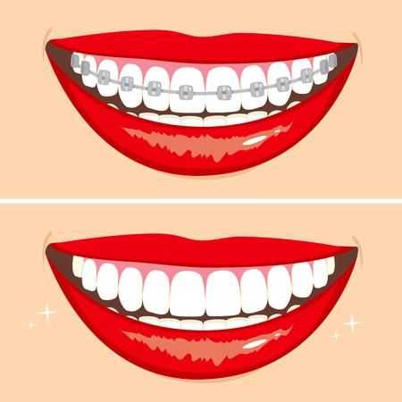 dientes caricatura: Ilustración de dos sonrisas felices que muestran antes y después del blanqueamiento proceso dientes Vectores