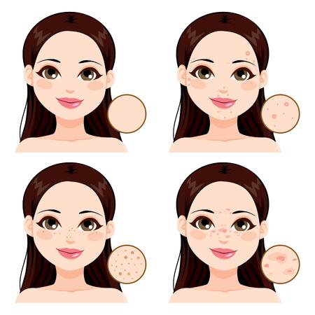 Mladá žena ukazuje účinky různých zdravotních kožních problémů v porovnání s čistou kůži a pihy