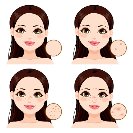 skin problem: Young woman showing the effects different skin health problems compared to clean skin and freckles Illustration