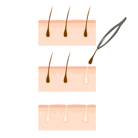 Close up of tweezers removing hair from skin