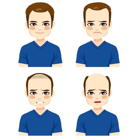 calvicie: Varón joven con las diferentes etapas de la caída del cabello