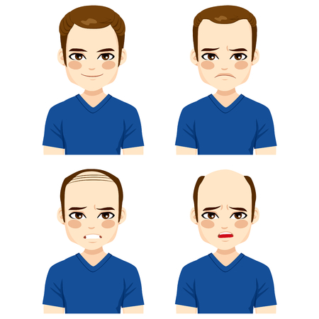 bald spot: Young male with different stages of hair loss