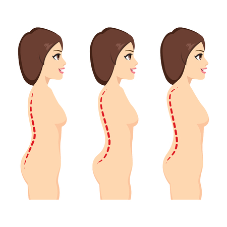 Infographic illustration side view of scoliosis medical condition
