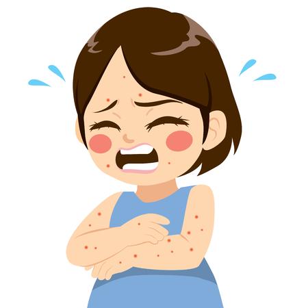 Schattig klein meisje met kleine jeukende blaren symptoom ziek met de ziekte van mazelen waterpokken Vector Illustratie