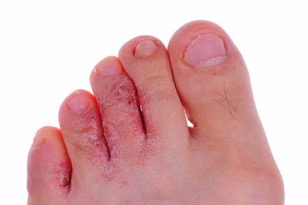 flat foot: athletes foot