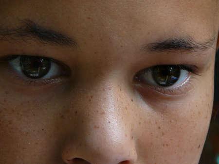 Frackle-faced girl.