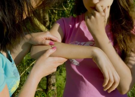 to tick: personas mirando garrapata de madera incrustadas en la piel humana